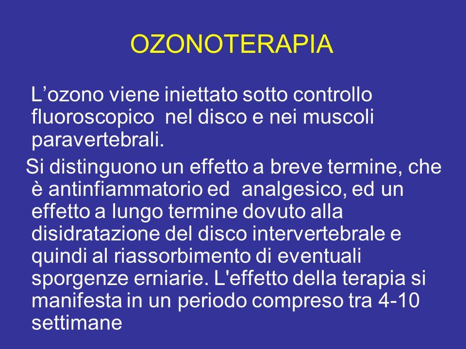 OZONOTERAPIA L'ozono viene iniettato sotto controllo fluoroscopico nel disco e nei muscoli paravertebrali.