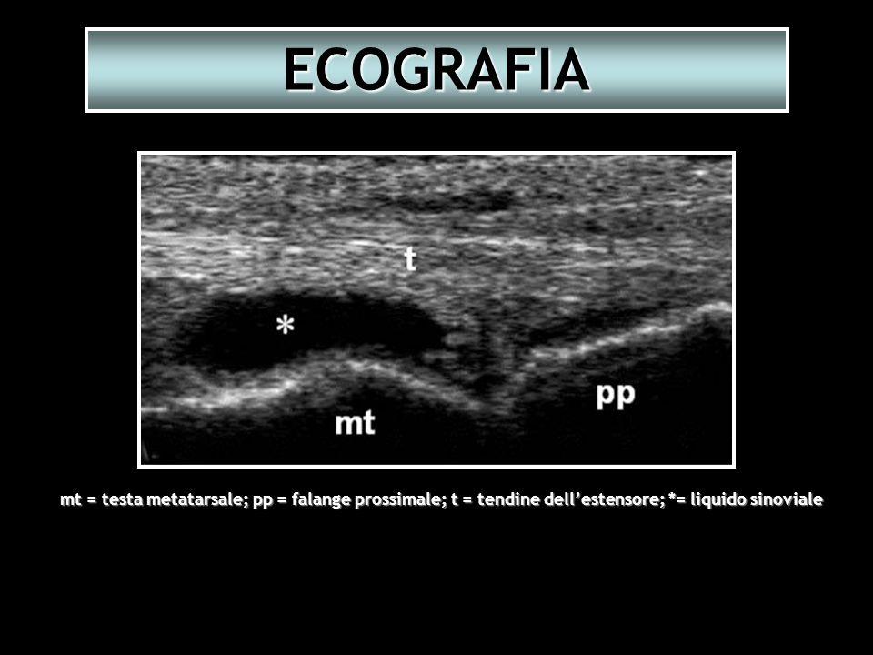 ECOGRAFIA mt = testa metatarsale; pp = falange prossimale; t = tendine dell'estensore; *= liquido sinoviale.