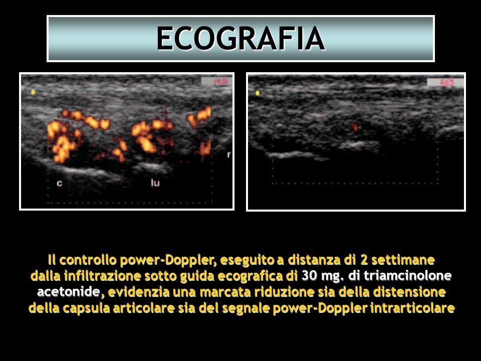 ECOGRAFIA Il controllo power-Doppler, eseguito a distanza di 2 settimane. dalla infiltrazione sotto guida ecografica di 30 mg. di triamcinolone.