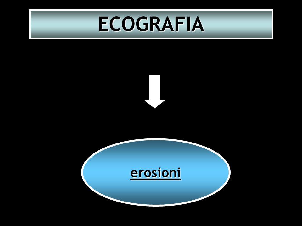 ECOGRAFIA erosioni