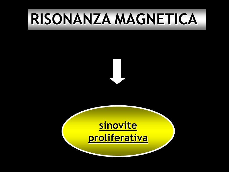 RISONANZA MAGNETICA sinovite proliferativa 23