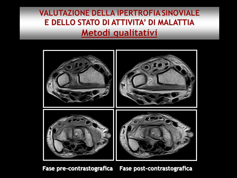 Metodi qualitativi VALUTAZIONE DELLA IPERTROFIA SINOVIALE