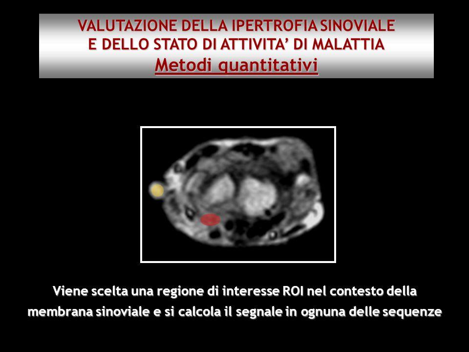 Metodi quantitativi VALUTAZIONE DELLA IPERTROFIA SINOVIALE