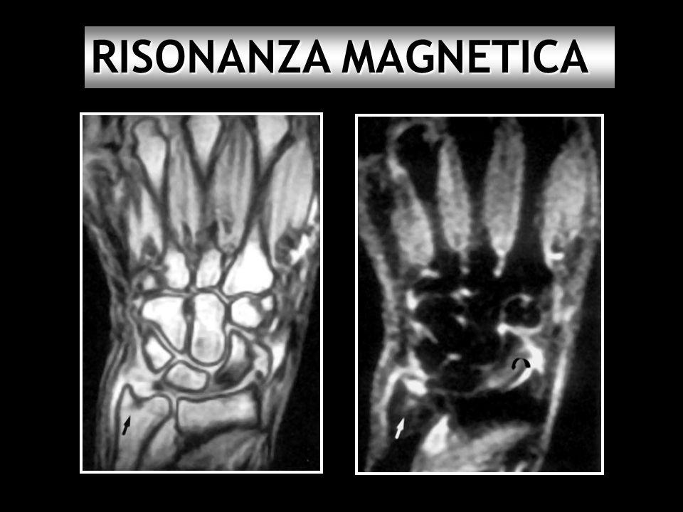 RISONANZA MAGNETICA 44