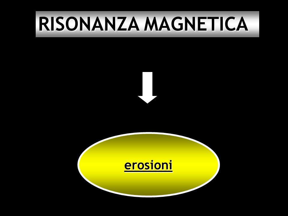 RISONANZA MAGNETICA erosioni 45