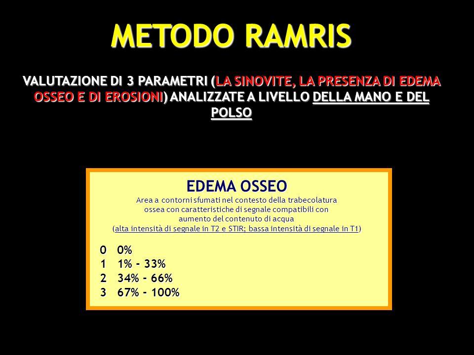 METODO RAMRIS 1 2 EDEMA OSSEO