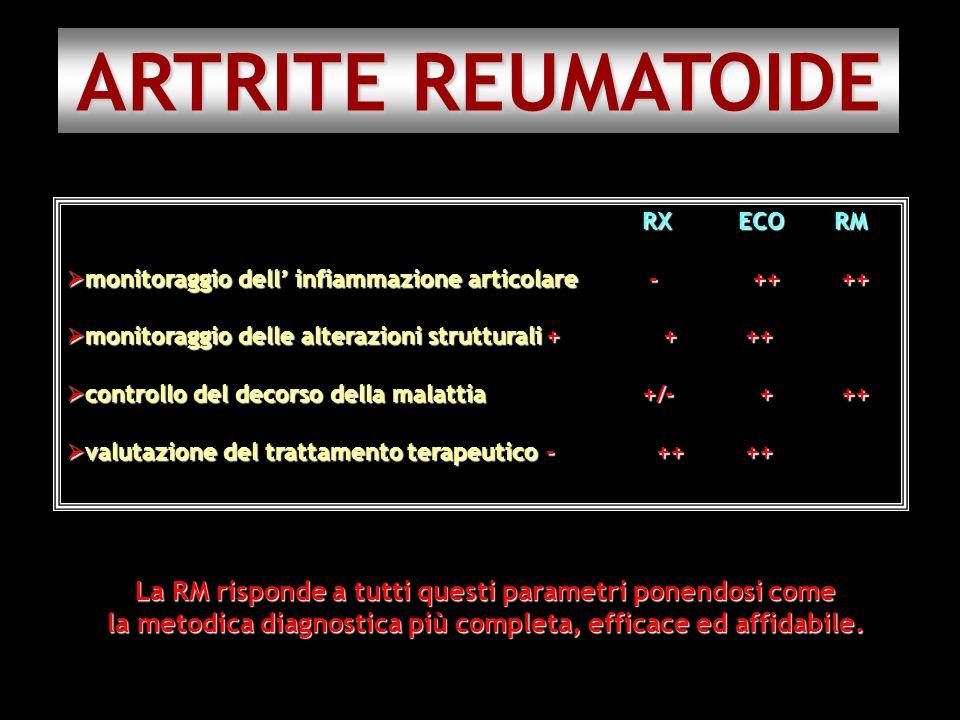 ARTRITE REUMATOIDE RX ECO RM. monitoraggio dell' infiammazione articolare - ++ ++ monitoraggio delle alterazioni strutturali + + ++
