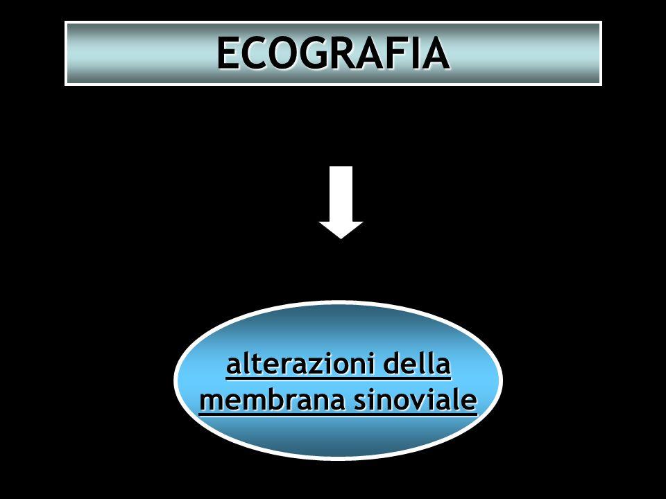 ECOGRAFIA alterazioni della membrana sinoviale