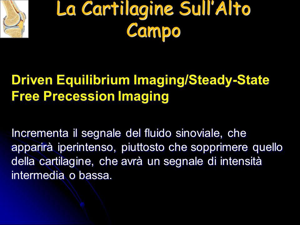 La Cartilagine Sull'Alto Campo