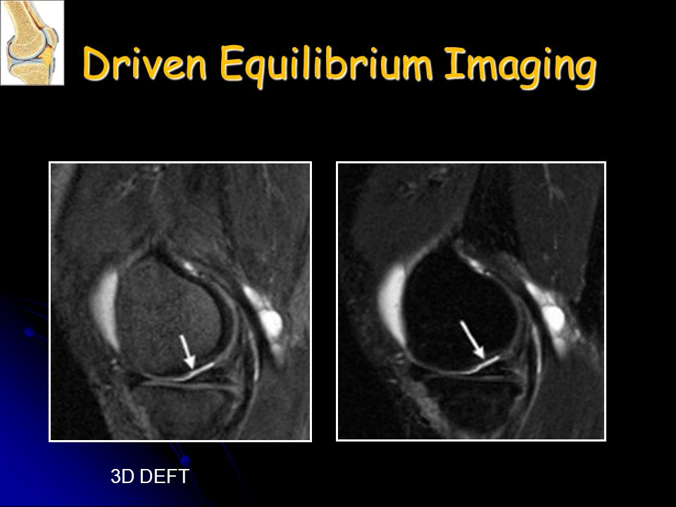 Driven Equilibrium Imaging