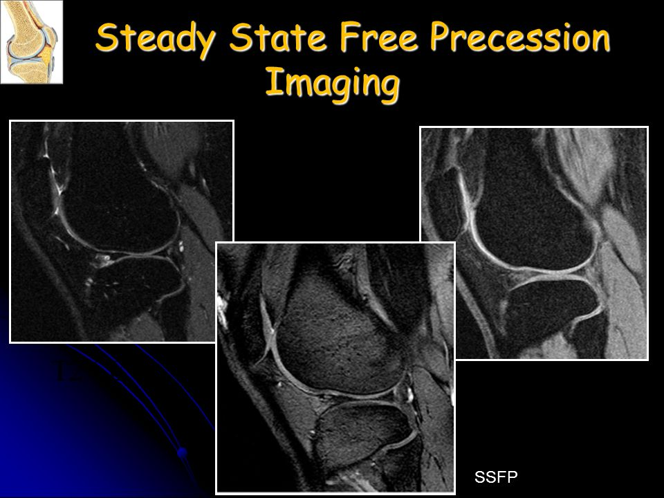 Steady State Free Precession Imaging