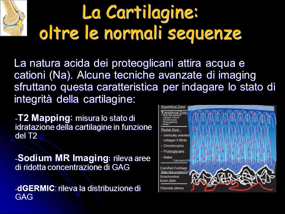 La Cartilagine: oltre le normali sequenze