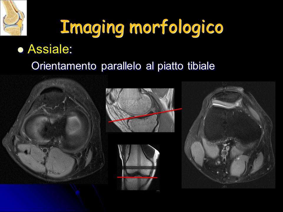 Imaging morfologico Assiale: Orientamento parallelo al piatto tibiale