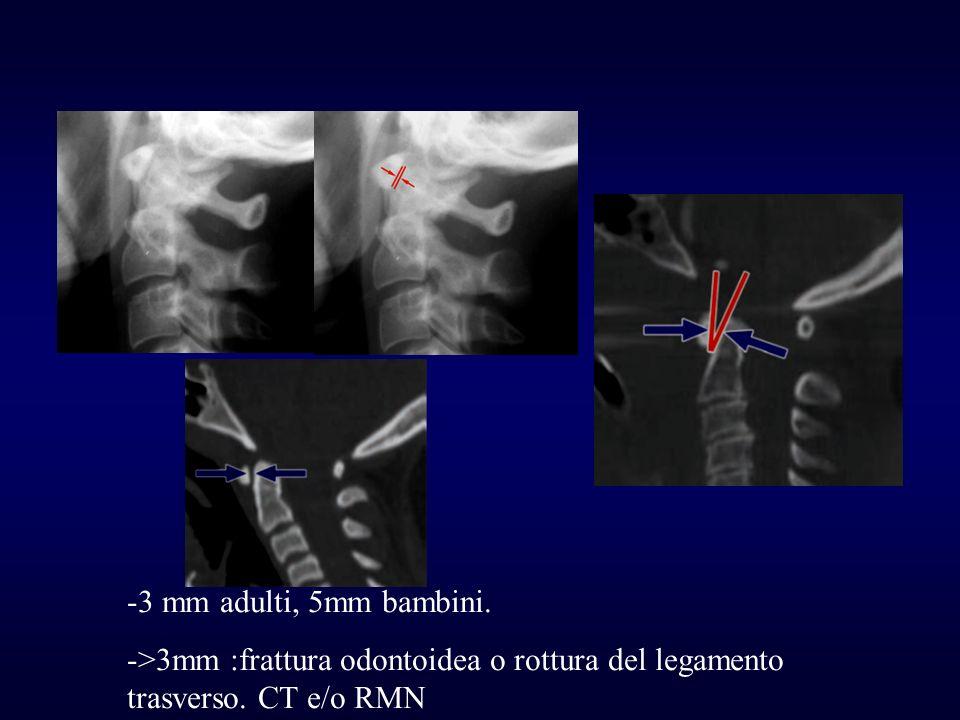 3 mm adulti, 5mm bambini. >3mm :frattura odontoidea o rottura del legamento trasverso. CT e/o RMN