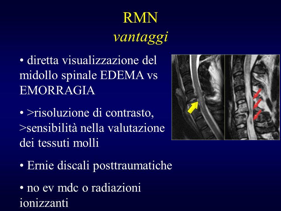 RMN vantaggi diretta visualizzazione del midollo spinale EDEMA vs EMORRAGIA.