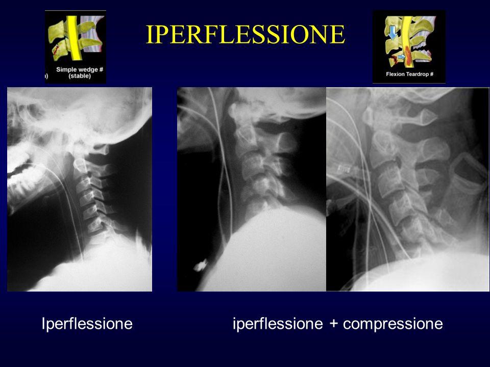 IPERFLESSIONE Iperflessione iperflessione + compressione