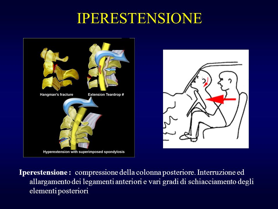 IPERESTENSIONE