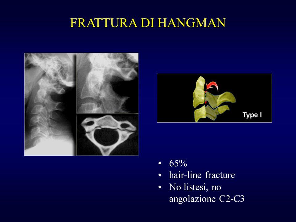 FRATTURA DI HANGMAN 65% hair-line fracture