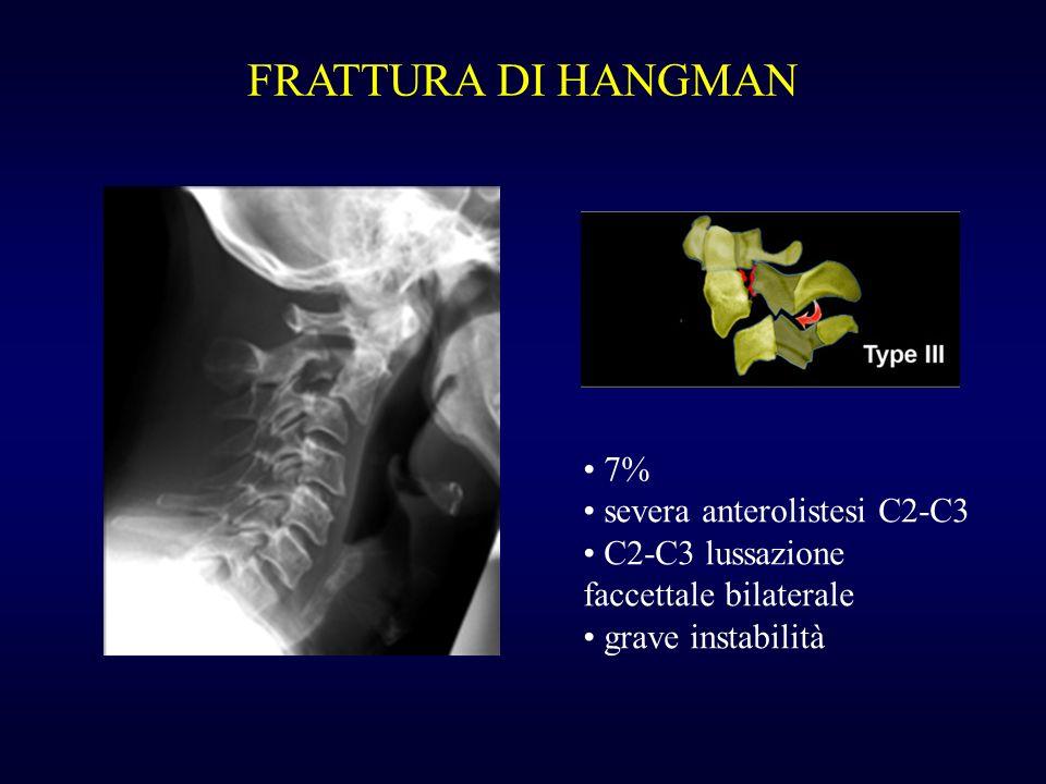 FRATTURA DI HANGMAN 7% severa anterolistesi C2-C3
