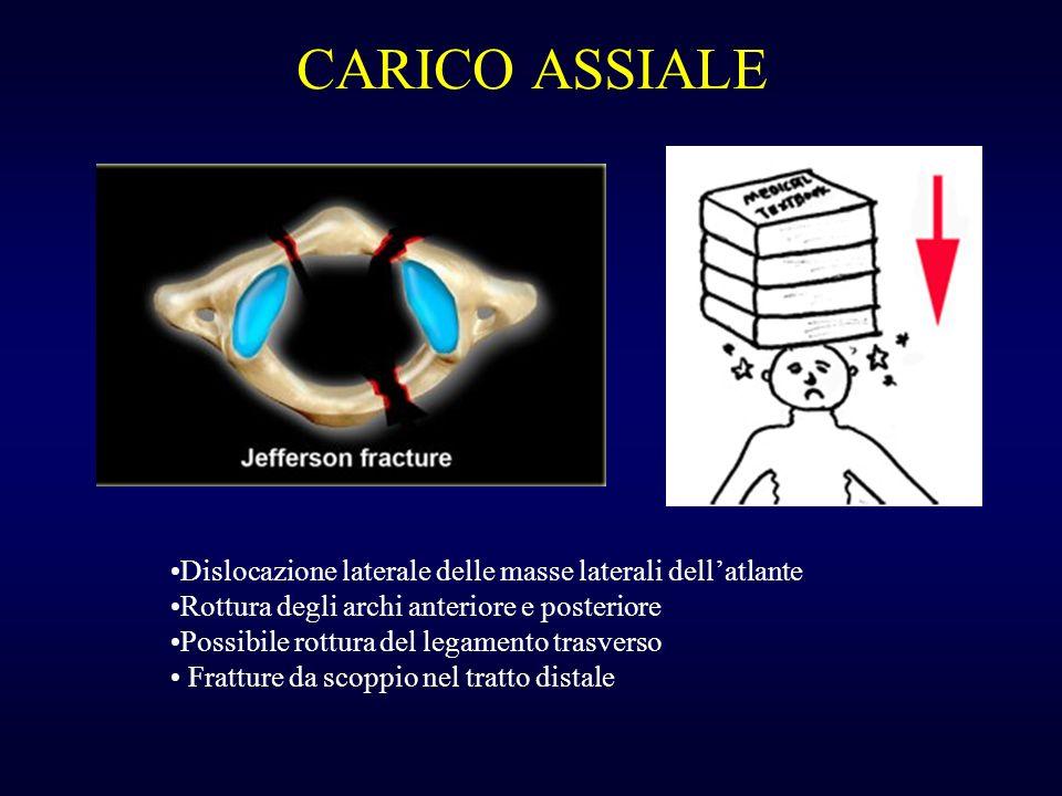 CARICO ASSIALE Dislocazione laterale delle masse laterali dell'atlante