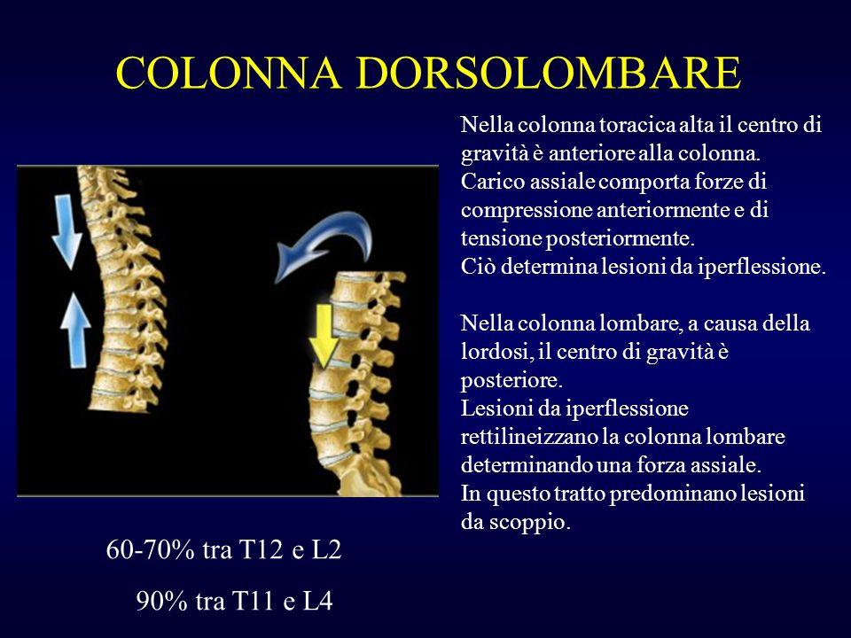 COLONNA DORSOLOMBARE 60-70% tra T12 e L2 90% tra T11 e L4