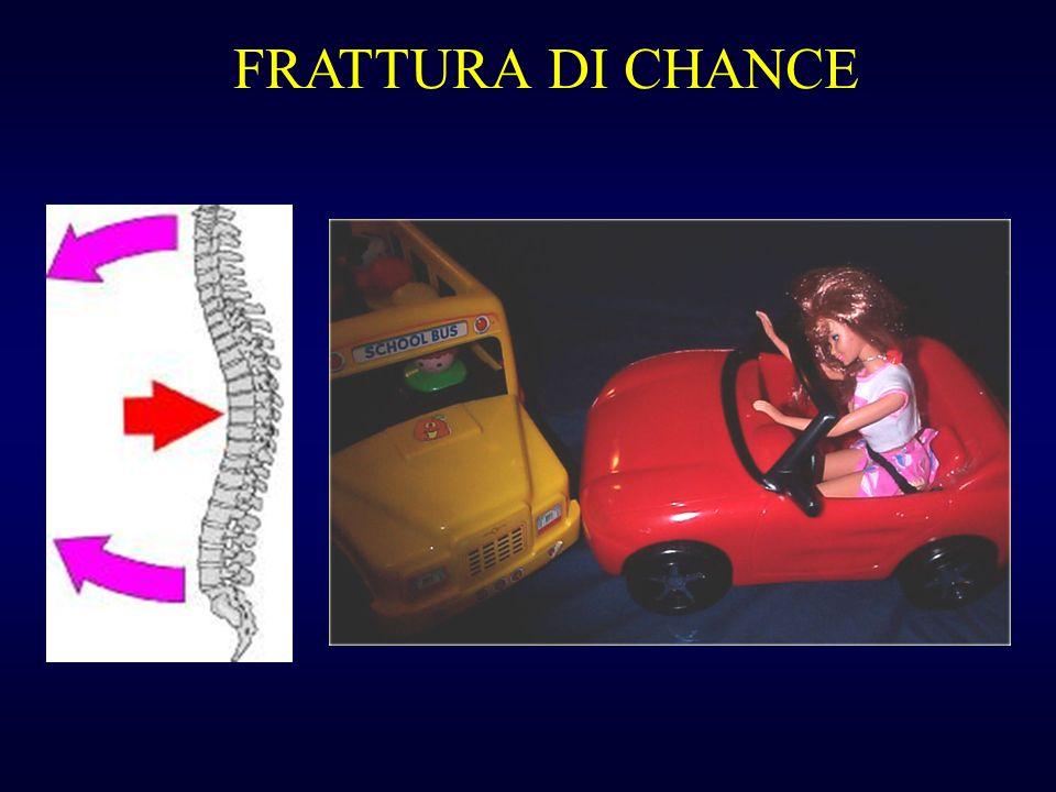 FRATTURA DI CHANCE
