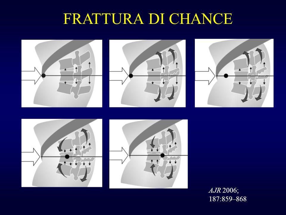 FRATTURA DI CHANCE AJR 2006; 187:859–868