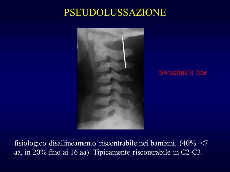 PSEUDOLUSSAZIONE Swischuk's line