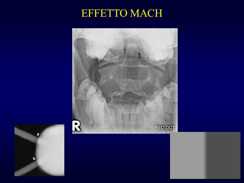 EFFETTO MACH è un effetto ottico.
