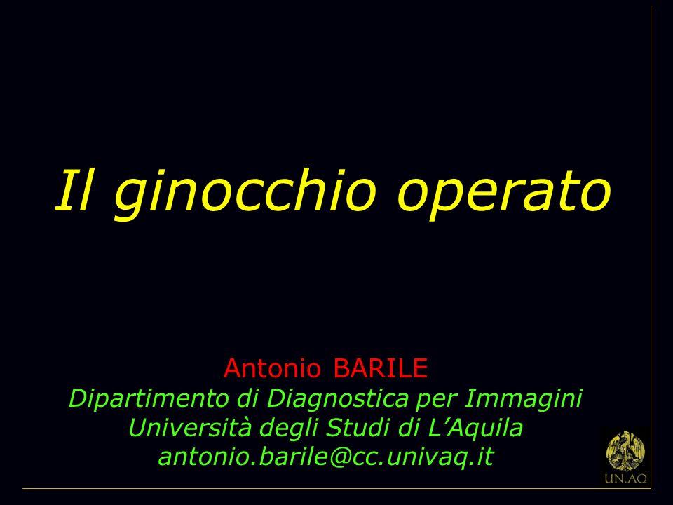 Il ginocchio operato Antonio BARILE
