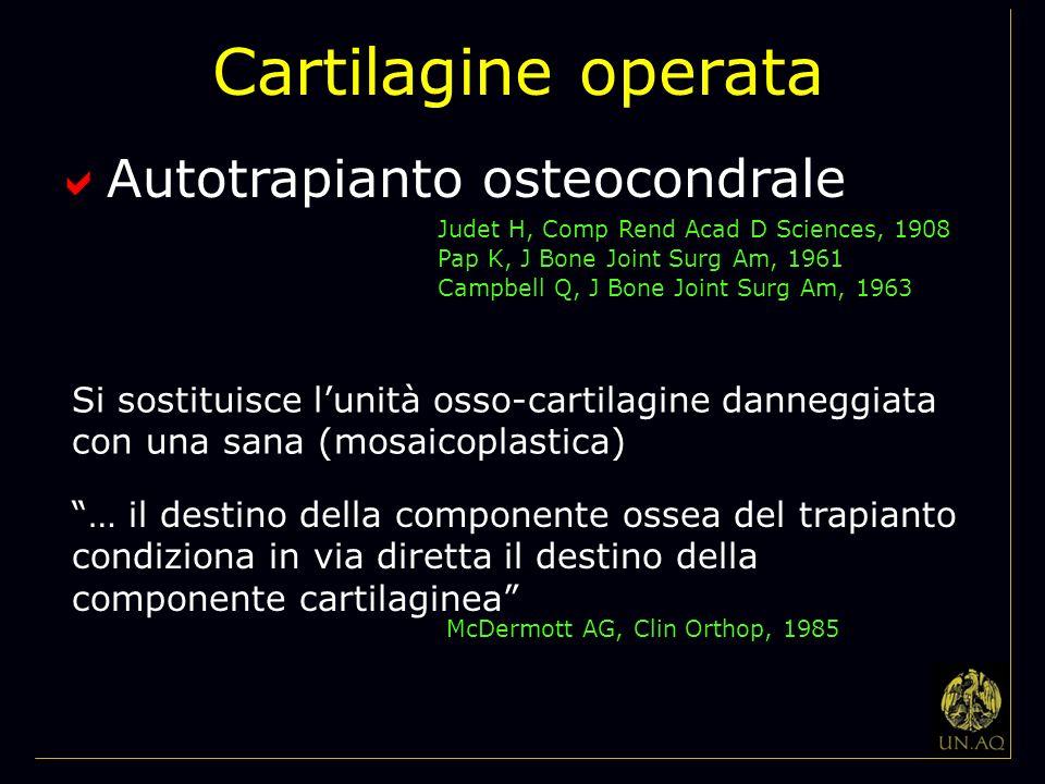 Cartilagine operata Autotrapianto osteocondrale