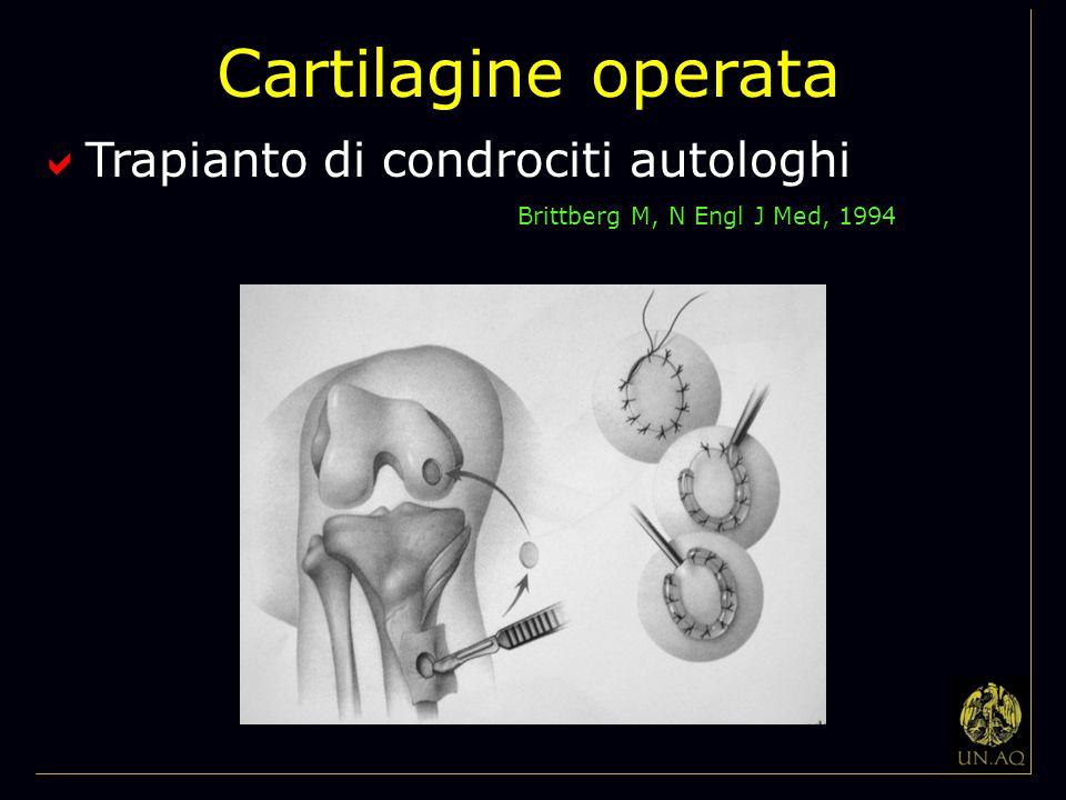 Cartilagine operata Trapianto di condrociti autologhi