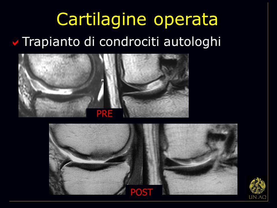 Cartilagine operata Trapianto di condrociti autologhi PRE POST