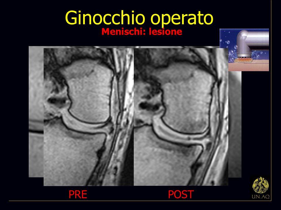 Ginocchio operato Menischi: lesione PRE POST