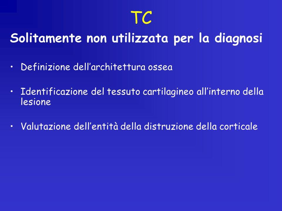 TC Solitamente non utilizzata per la diagnosi