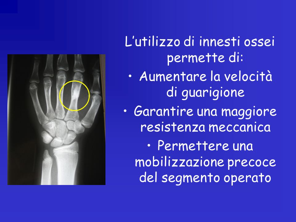 L'utilizzo di innesti ossei permette di: