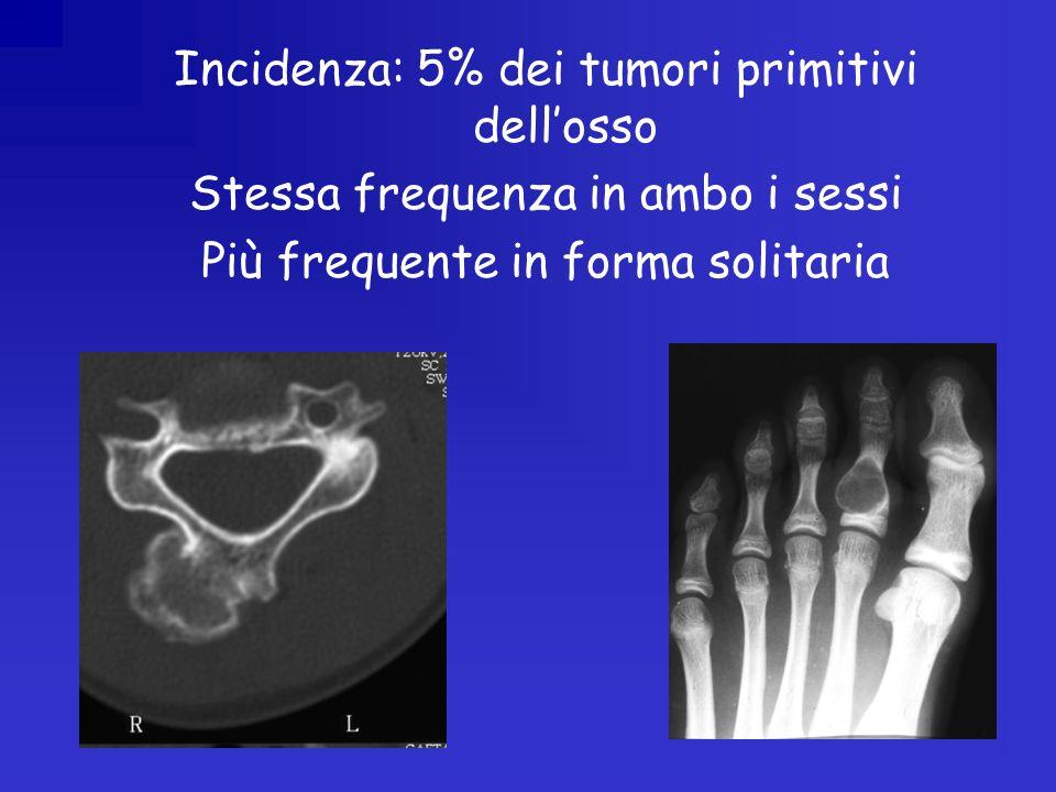 Incidenza: 5% dei tumori primitivi dell'osso