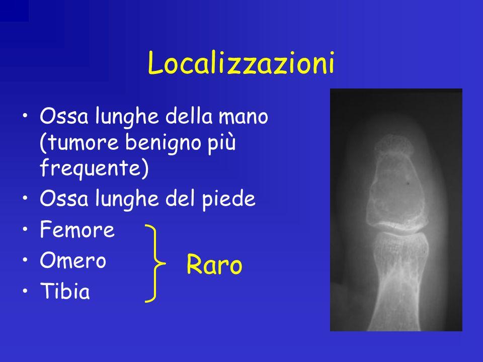 Localizzazioni Ossa lunghe della mano (tumore benigno più frequente) Ossa lunghe del piede. Femore.