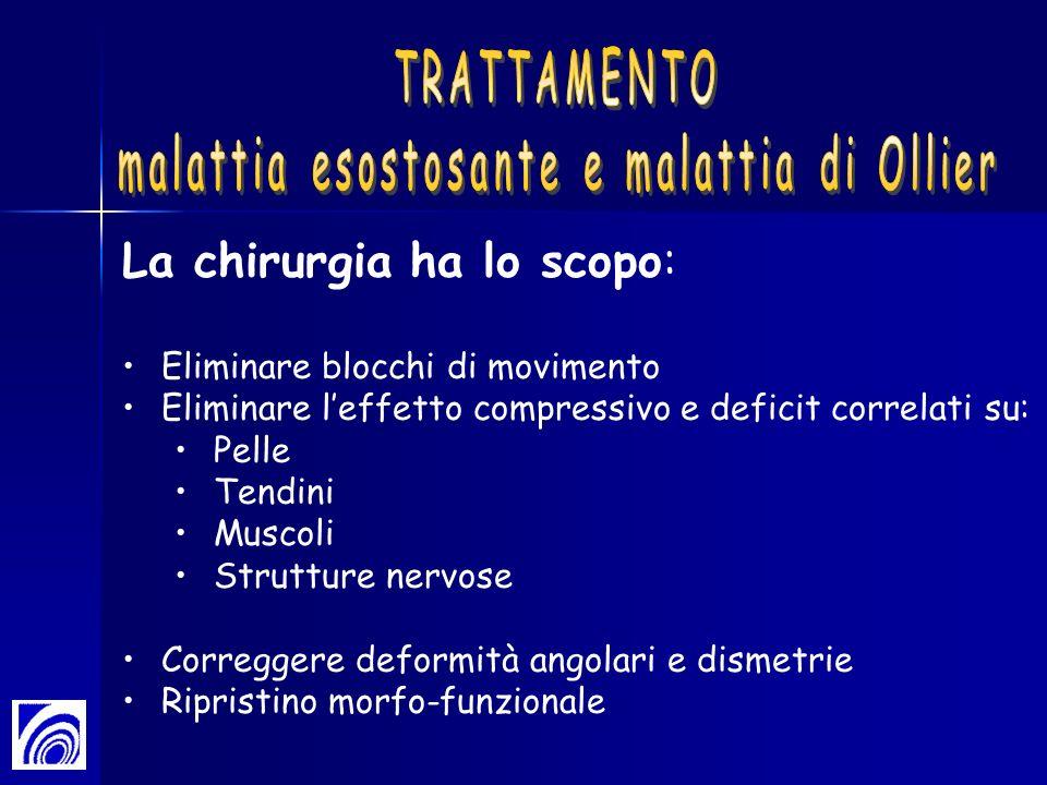 malattia esostosante e malattia di Ollier