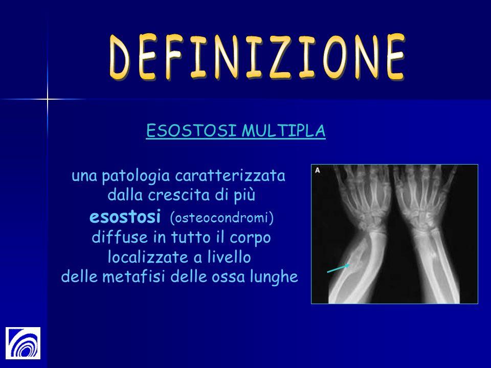 DEFINIZIONE esostosi (osteocondromi) ESOSTOSI MULTIPLA