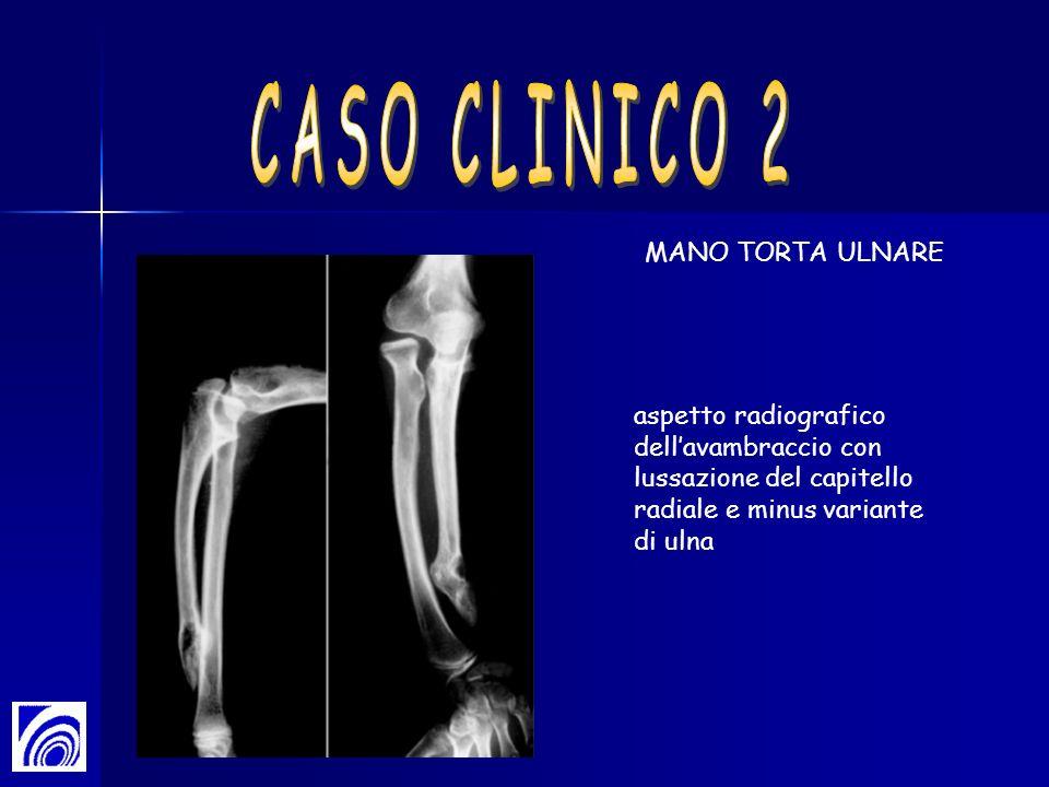 CASO CLINICO 2 MANO TORTA ULNARE