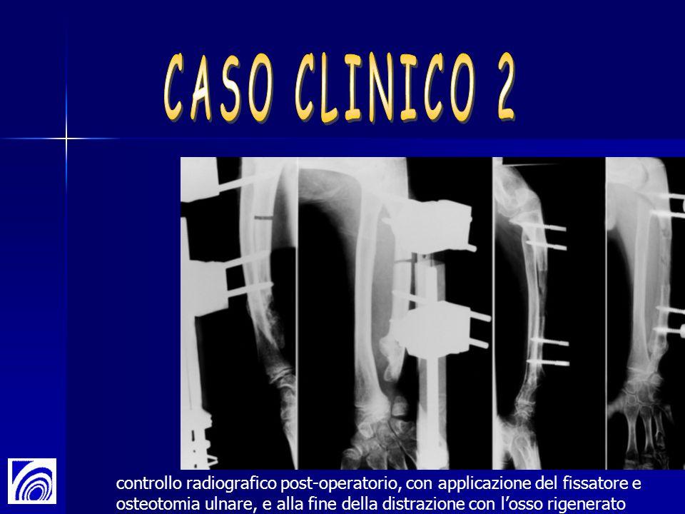 CASO CLINICO 2controllo radiografico post-operatorio, con applicazione del fissatore e.