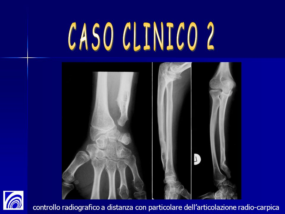 CASO CLINICO 2 controllo radiografico a distanza con particolare dell'articolazione radio-carpica