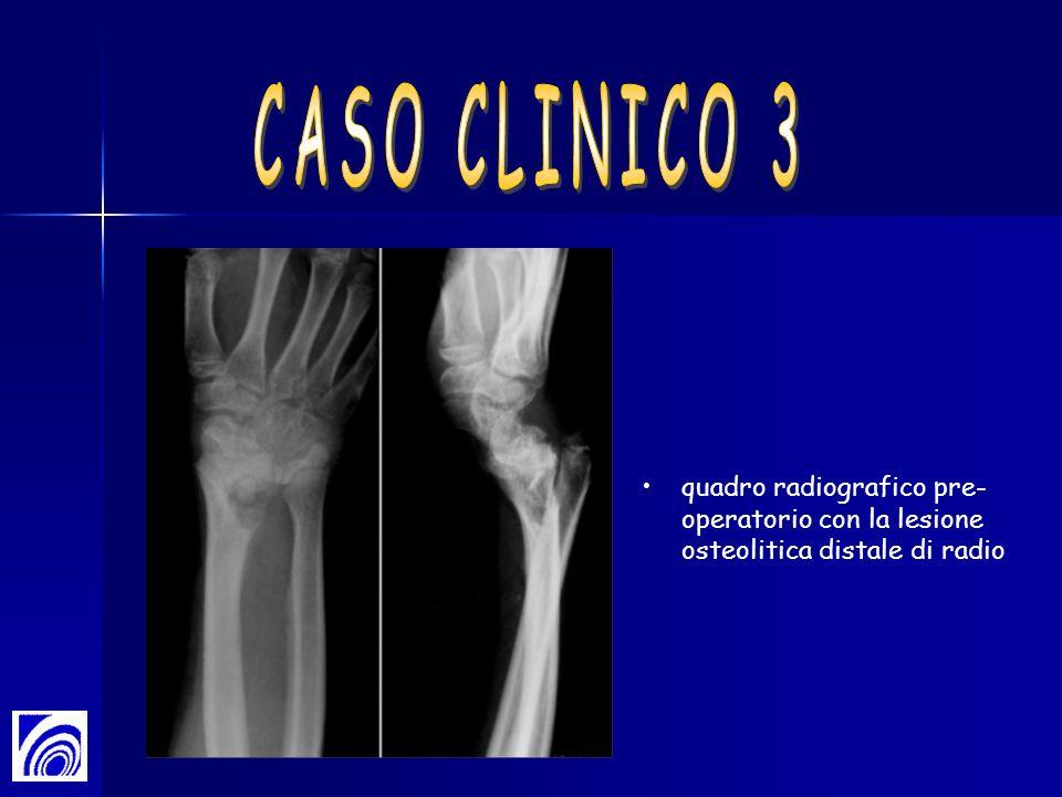 CASO CLINICO 3 quadro radiografico pre-operatorio con la lesione osteolitica distale di radio