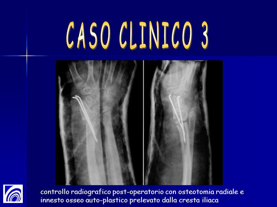 CASO CLINICO 3 controllo radiografico post-operatorio con osteotomia radiale e innesto osseo auto-plastico prelevato dalla cresta iliaca.