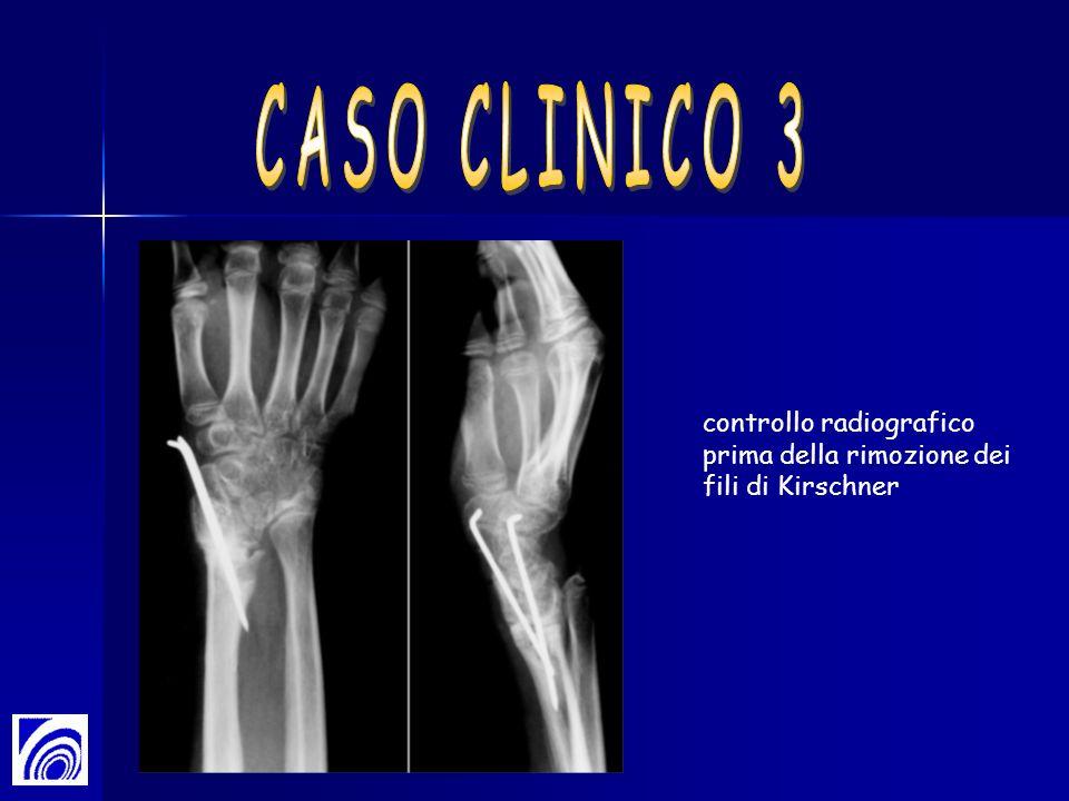 CASO CLINICO 3 controllo radiografico prima della rimozione dei fili di Kirschner