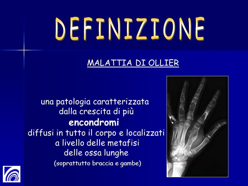DEFINIZIONE encondromi MALATTIA DI OLLIER una patologia caratterizzata