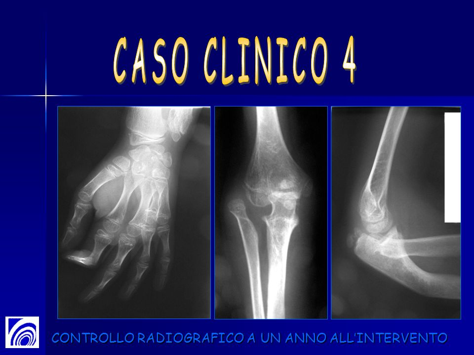 CASO CLINICO 4 CONTROLLO RADIOGRAFICO A UN ANNO ALL'INTERVENTO