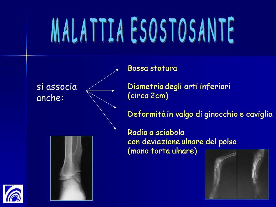 MALATTIA ESOSTOSANTE si associa anche: Bassa statura