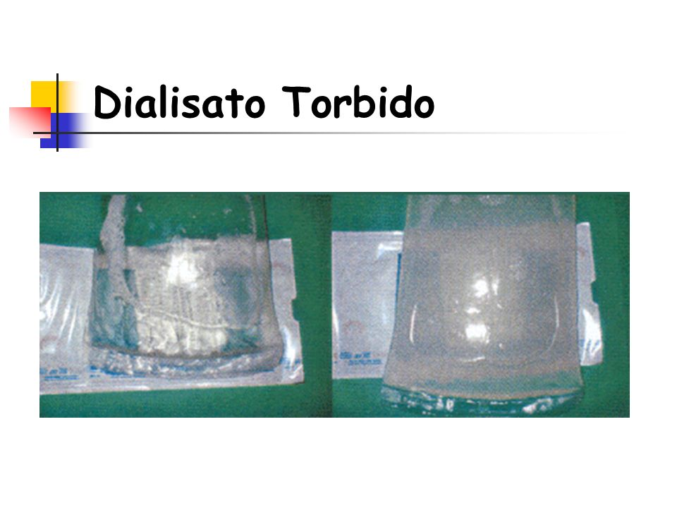 Dialisato Torbido